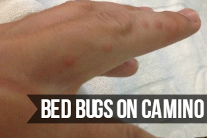 Bed Bugs on Camino de Santiago