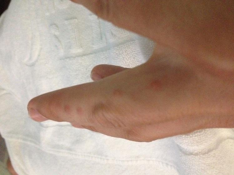 Bed Bug Bites On My Finger